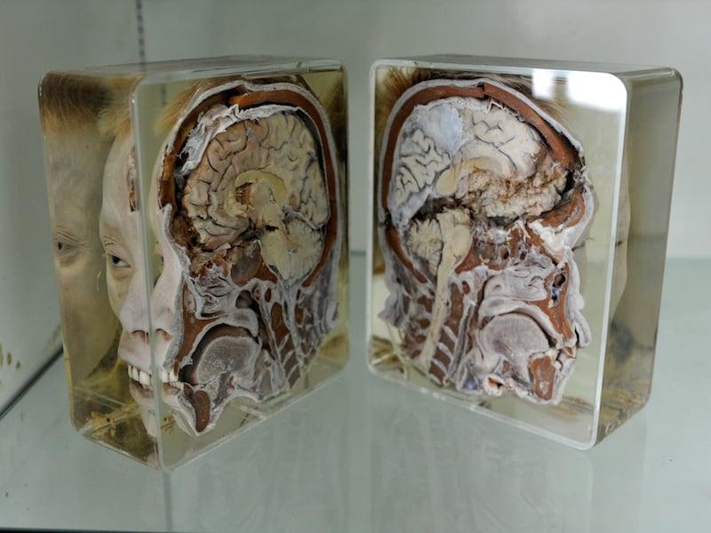 Siriraj Medical Museum 2