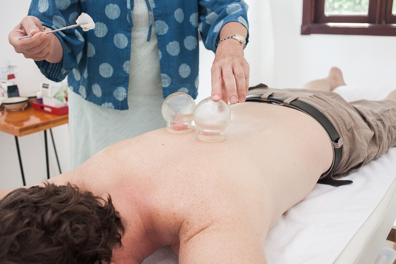 Curious About Cupping